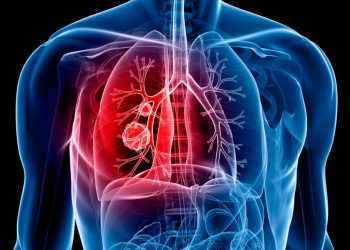 lung cancer AI