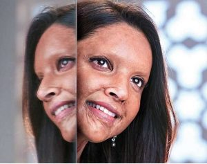 Deepika shares her first look from 'Chhapaak'